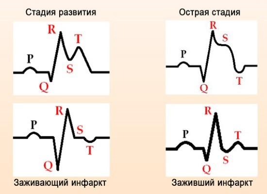 Изменения на ЭКГ при инфаркте миокарда