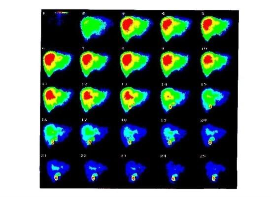 Сцинтиграфия гепатобилиарной системы