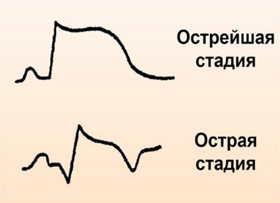 Острая и острейшая стадия ИМ на электрокардиограмме