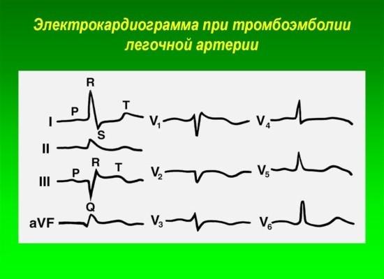 Электрокардиограмма при тромбоэмболии легочной артерии