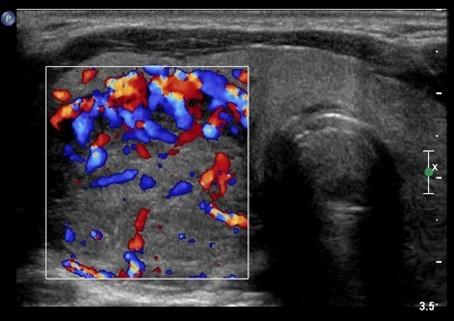 узи щитовидной железы при онкологии