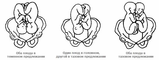 Расположение плодов в полости матки