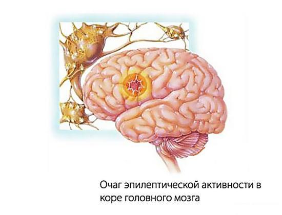 Головной мозг больного, страдающего эпилепсией
