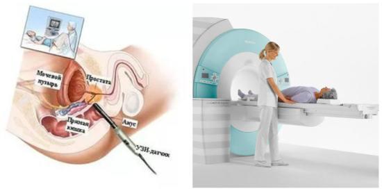 Методы исследования предстательной железы