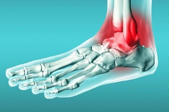 Боль в области голеностопного сустава - одно из показаний к назначению рентгенографии
