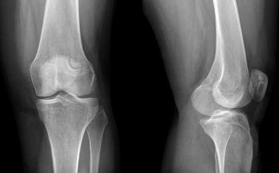 Рентгенография коленных суставов - неинвазивный и информативный диагностический инструмент