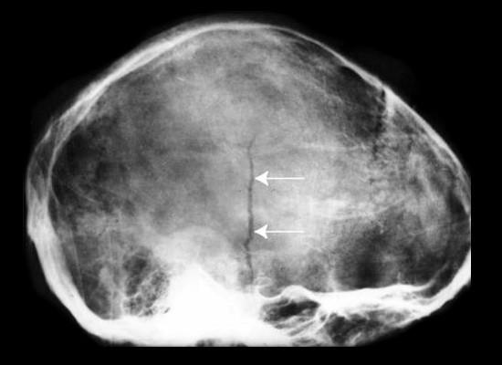 Линейный перелом кости черепа