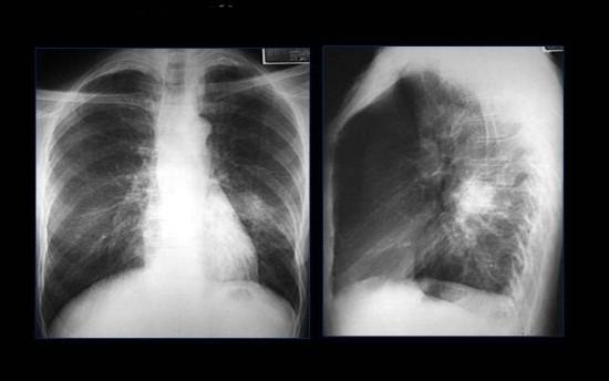 Очаговое затемнение на рентгеновском снимке легких