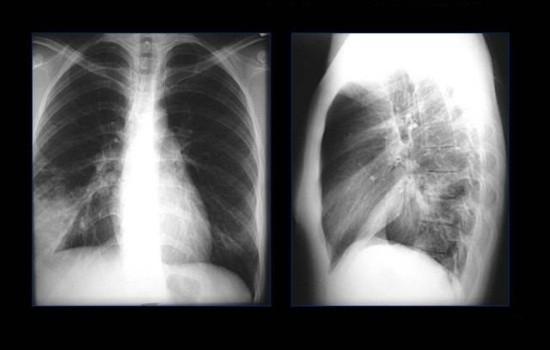 Сегментарное затемнение на рентгеновском снимке легких