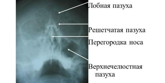 Рентгенограмма придаточных пазух носа