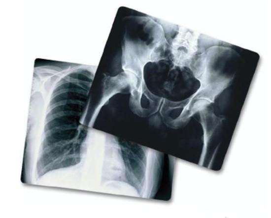 Рентген по показаниям делают столько раз, сколько это необходимо