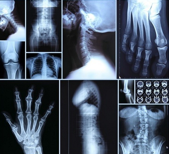 Современные цифровые рентген-аппараты несут меньшую лучевую нагрузку на обследуемого