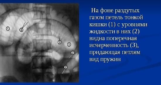 Рентгеновский снимок ОБП в прямой проекции
