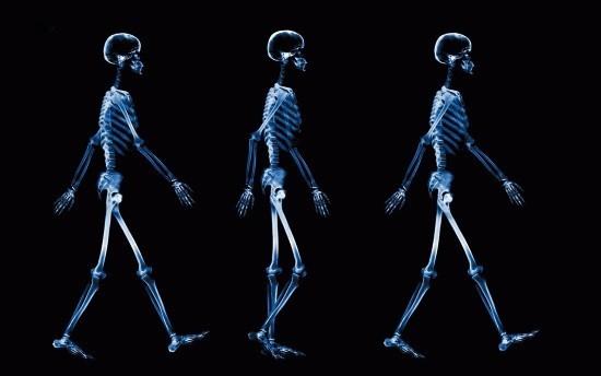 Рентген помогает врачу поставить точный диагноз в целом ряде случаев