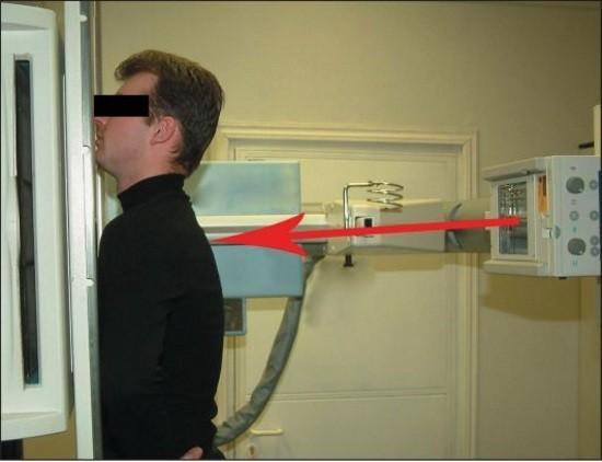 Пациент в рентген-кабинете