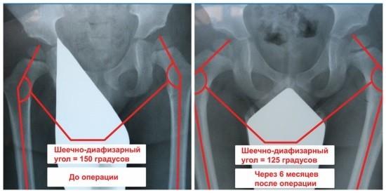 Измерение шеечно-диафизарного угла