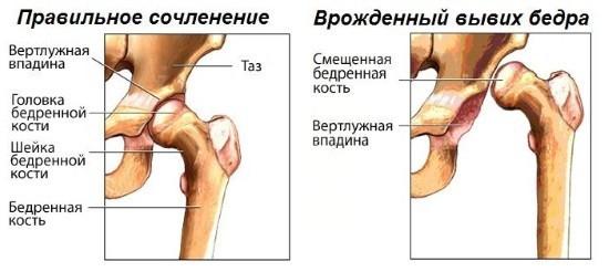 Изображение - Рентгенограммы тазобедренных суставов у детей rentgen-tazobedrennogo-sustava-v-detskom-vozraste-6
