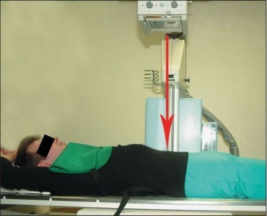 Пациенту проводят экскреторную урографию