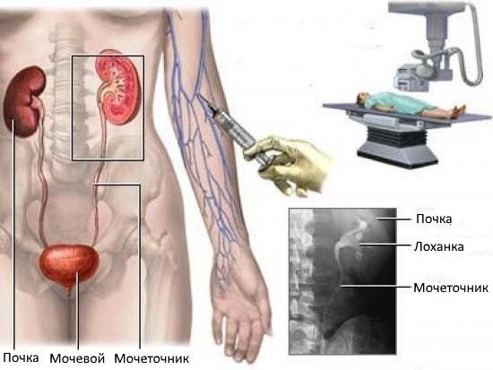 Исследование почек и мочевыводящих путей с применением рентгенконтрастного вещества