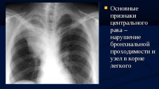 Центральные формы рак легких развиваются в крупных бронхах