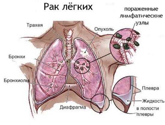 Злокачественное новообразование легких