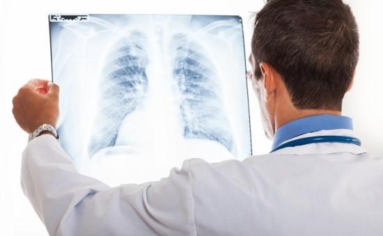 Рентгенограмма ОГК