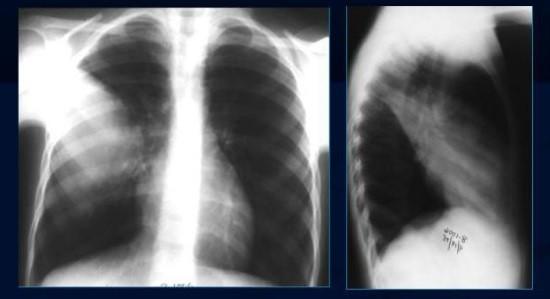 Пневмония на рентгенограмме