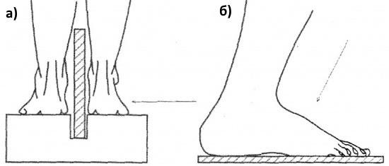 Схемы рентгенографии стоп под нагрузкой