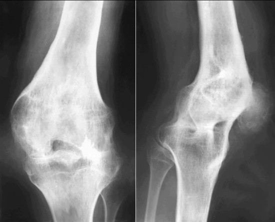 Изображение - Рентгенодиагностика заболеваний суставов rentgenologicheskoe-issledovanie-sustavov-i-diagnostika-ih-zabolevanij-5