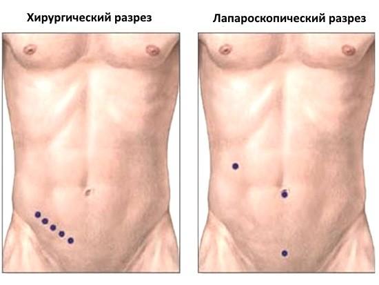 Разрезы при полостное операции и лапароскопии