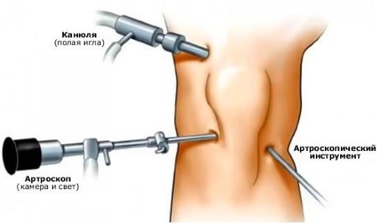 Артроскопия коленного сустава осуществляется через микроразрезы кожи в области колена