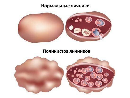 Беременность после лапароскопии в течение года шаг за шагом