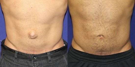 Мужчине была выполнена герниопластика (справа)