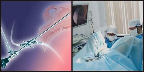 Решение о необходимости проведения гистероскопии принимает лечащий врач
