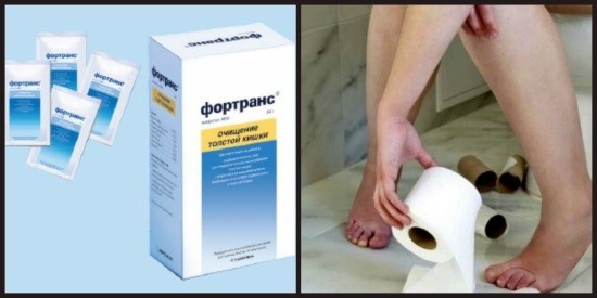Фортранс подготовка к колоноскопии как пить