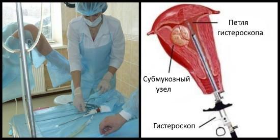 Гистероскопическое удаление подслизистой миомы