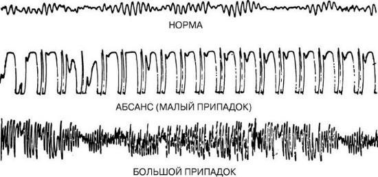 Электроэнцефалограммы