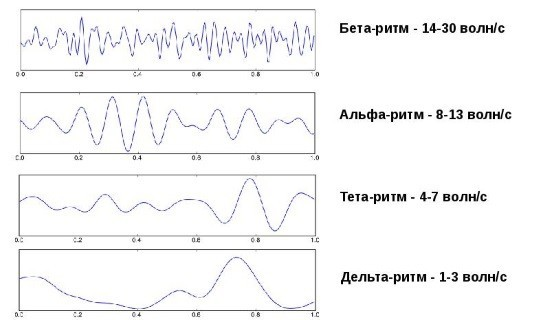 Ритмы головного мозга на ЭЭГ