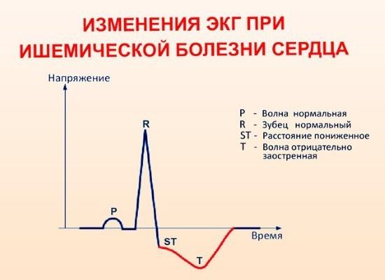 ЭКГ при ишемической болезни сердца