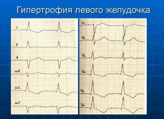 Гипертрофия миокарда левого желудочка возникает у пациентов с гипертонической болезнью